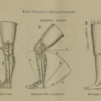 The Palmer Patent Leg